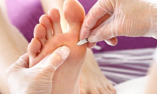 Plástica nos pés