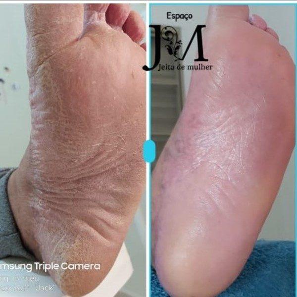 plástica dos pés resultados