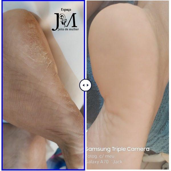 plástica nós pés resultados